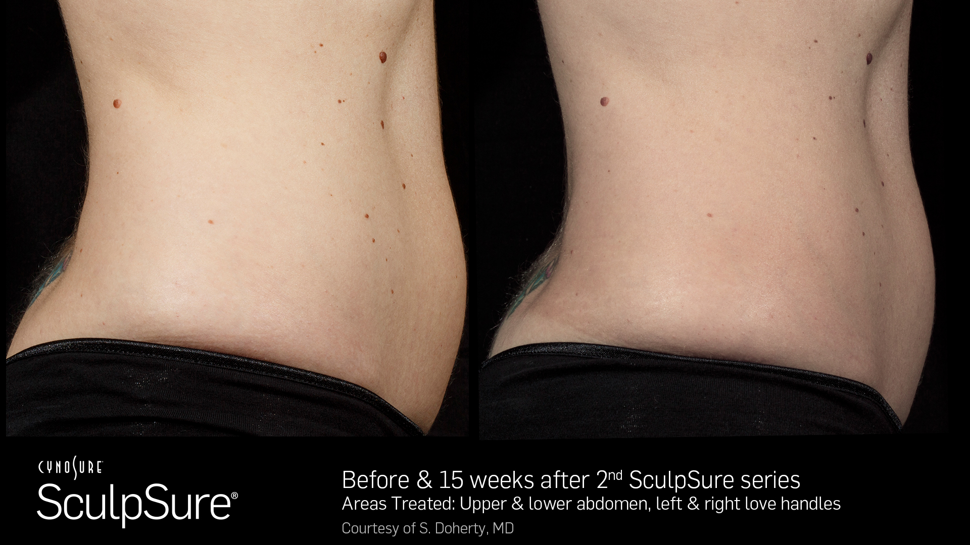 Body Contouring Before And After Clc Beauty Rx